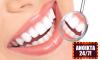 Καθαρισμός Δοντιών στο Μαρούσι (Ανοιχτά 24/7) - 04