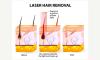 Αποτρίχωση με Laser Νέας Γενιάς Dermaline - 04